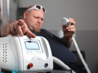 3 Aspects to Consider for Laser Tattoo Removal