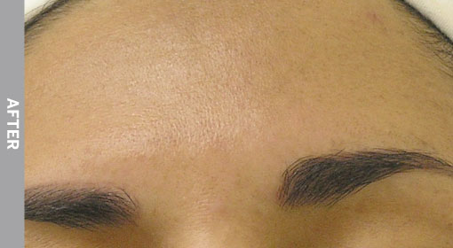 hydrafacial Hyperpigmentation After