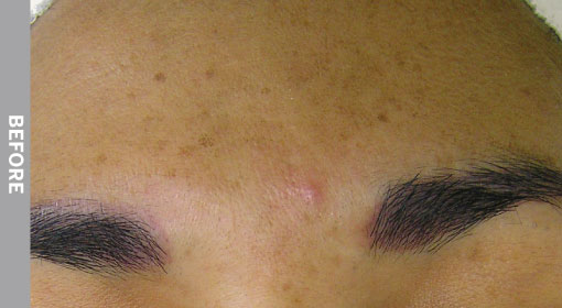 hydrafacial Hyperpigmentation Before