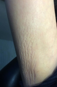 stretch marks before skin pen