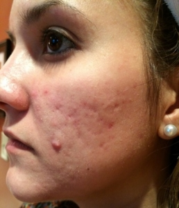 Acne scar before Skin Pen II
