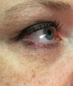 Microneedling with infusion after eye