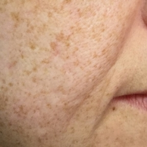 microneedling with infusion after lower face