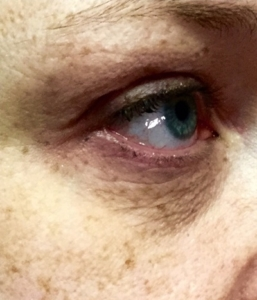 microneedling with infusion before eye