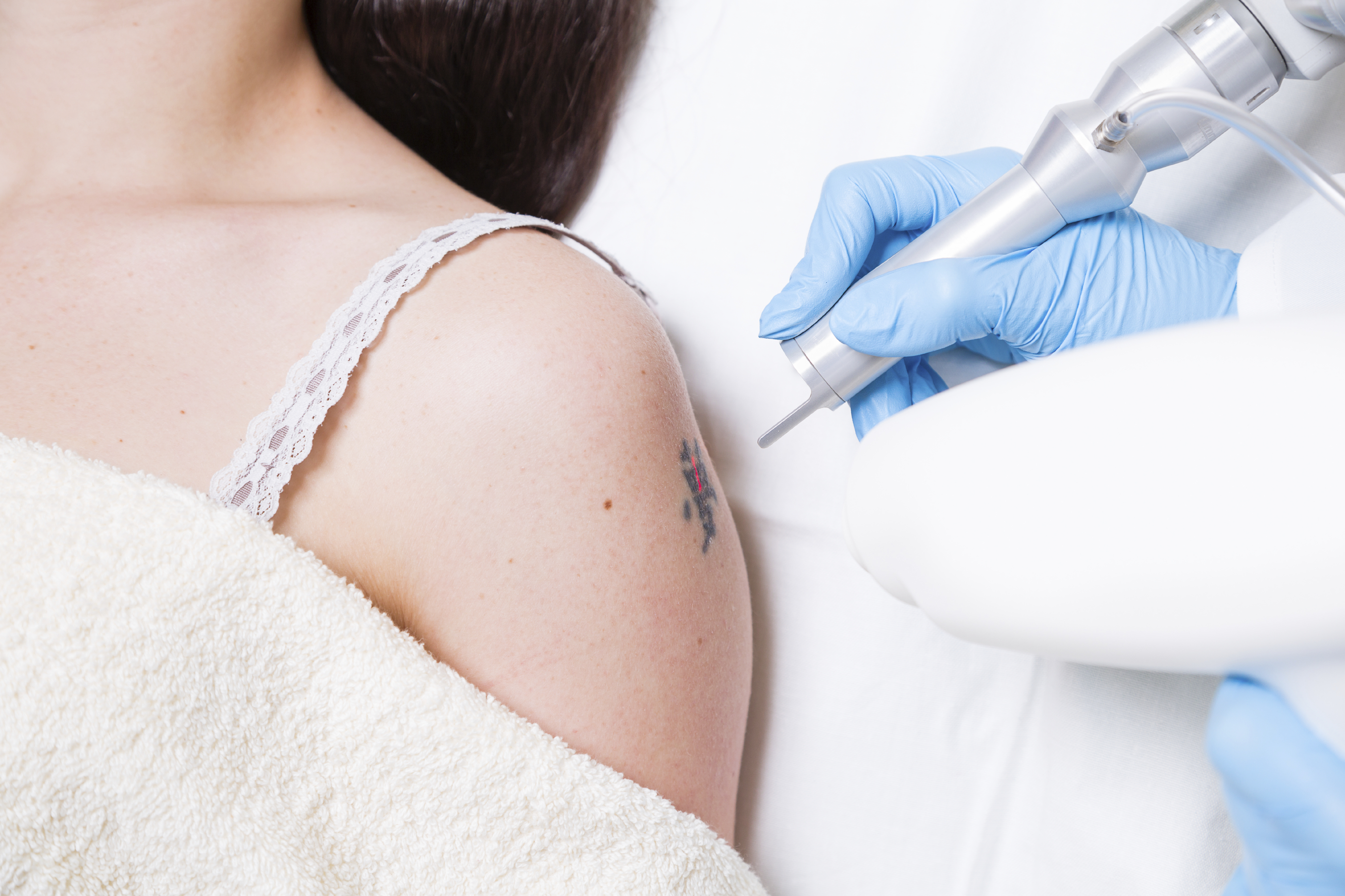 Tattoo Removal Safety: How to care for your skin before and after laser tattoo removal