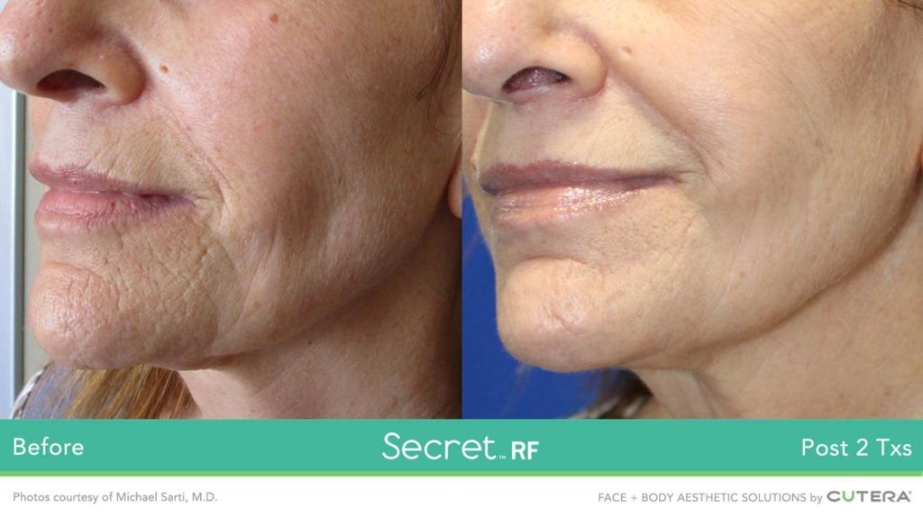Secret RF Microneedling Treatment | Mirabile MD Beauty