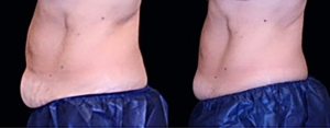 Non-Surgical Body Sculpting? Yes, Please!