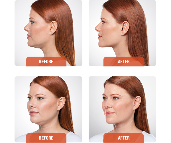 What Are Kybella Injections?