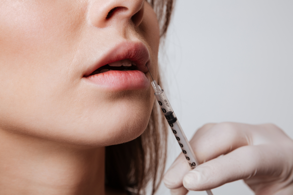 Lip Injections: Why Your Fillers Should Be as Unique as Your Goals