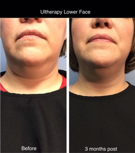 Ultherapy Treatment for Brow Lift & Skin Tightening
