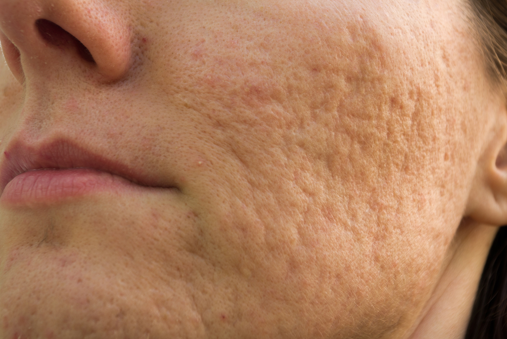 3 Ways To Reduce The Appearance Of Acne Scars Mirabile