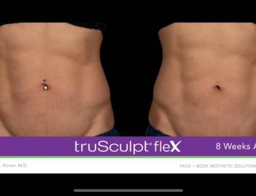 What is truSculpt fleX?