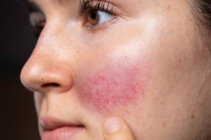 What Is Rosacea and How Is It Treated?
