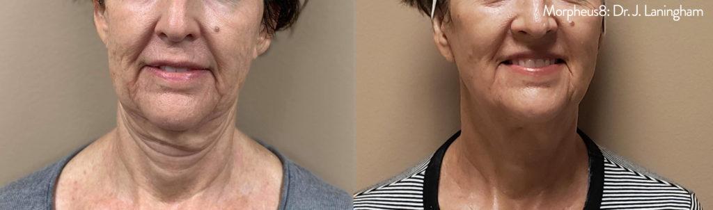 Morpheus 8 Microneedling & Collagen Treatment| Mirabile M ...