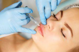 Restylane Kysse: The Newest FDA-Approved Lip Filler