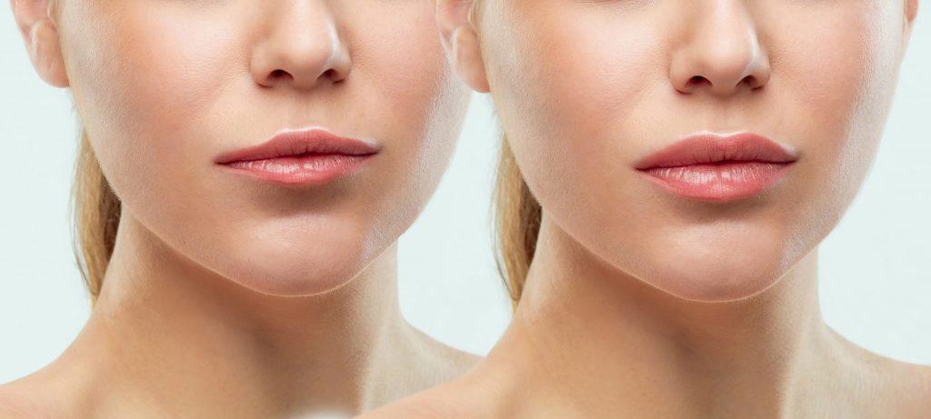 lip flip with botox